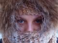 Зимняя аллергия на холод – как распознать и лечить болезнь?